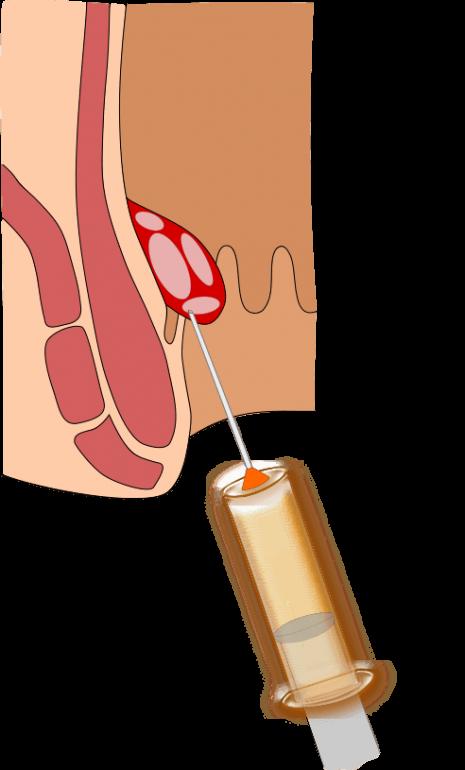 術 ジオン 後 注射