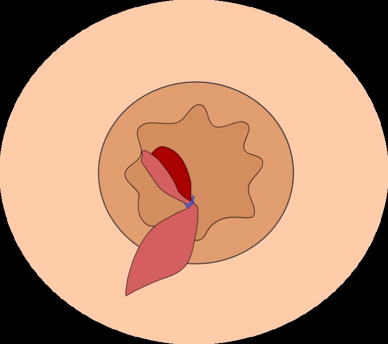 結紮切除術2