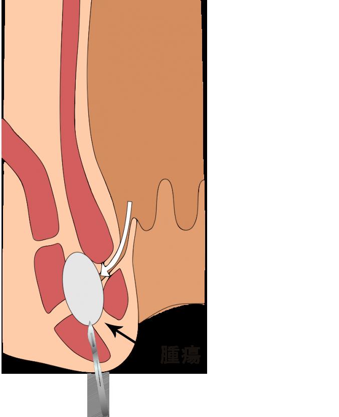 切開排膿術