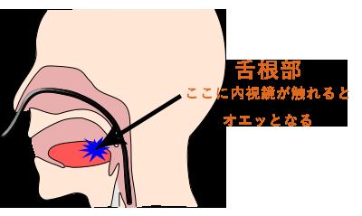 鼻から胃カメラを入れる経鼻内視鏡を導入