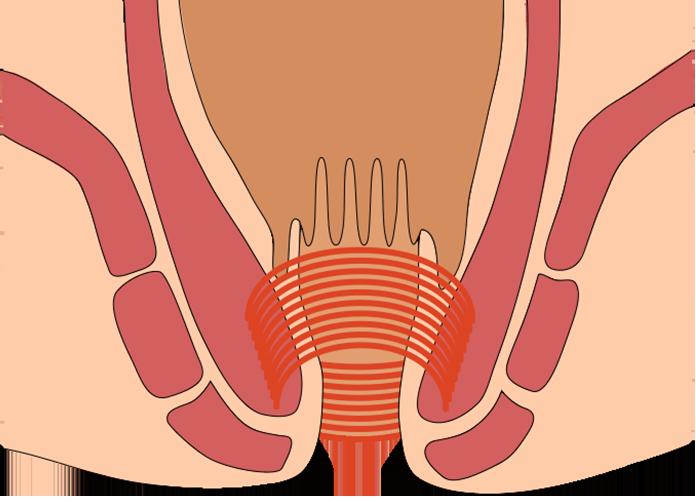 肛門管をぐるりと取り囲んでいる内括約筋の一部を切って、肛門を拡げます。