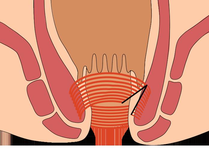 内括約筋の一部を切るとお尻の穴が拡がります。