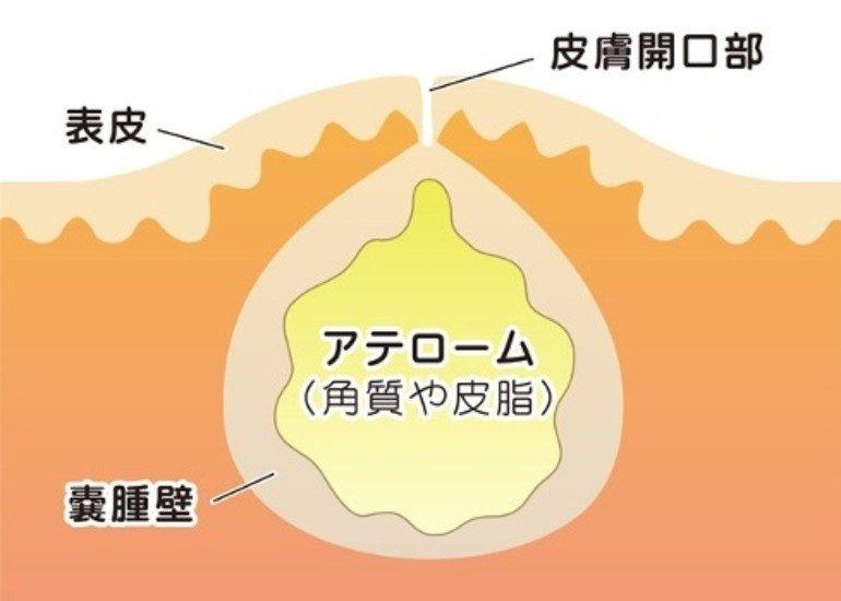 大阪市鶴見区で粉瘤・脂肪腫などの皮下腫瘤摘出をしている服部クリニック